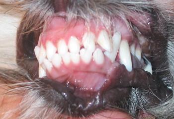 Причины и профилактика образования зубного налета и зубного камня