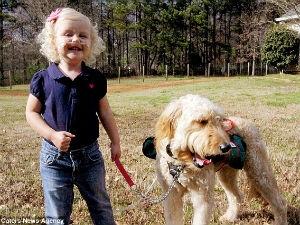 Девочка живёт благодаря собаке (США)